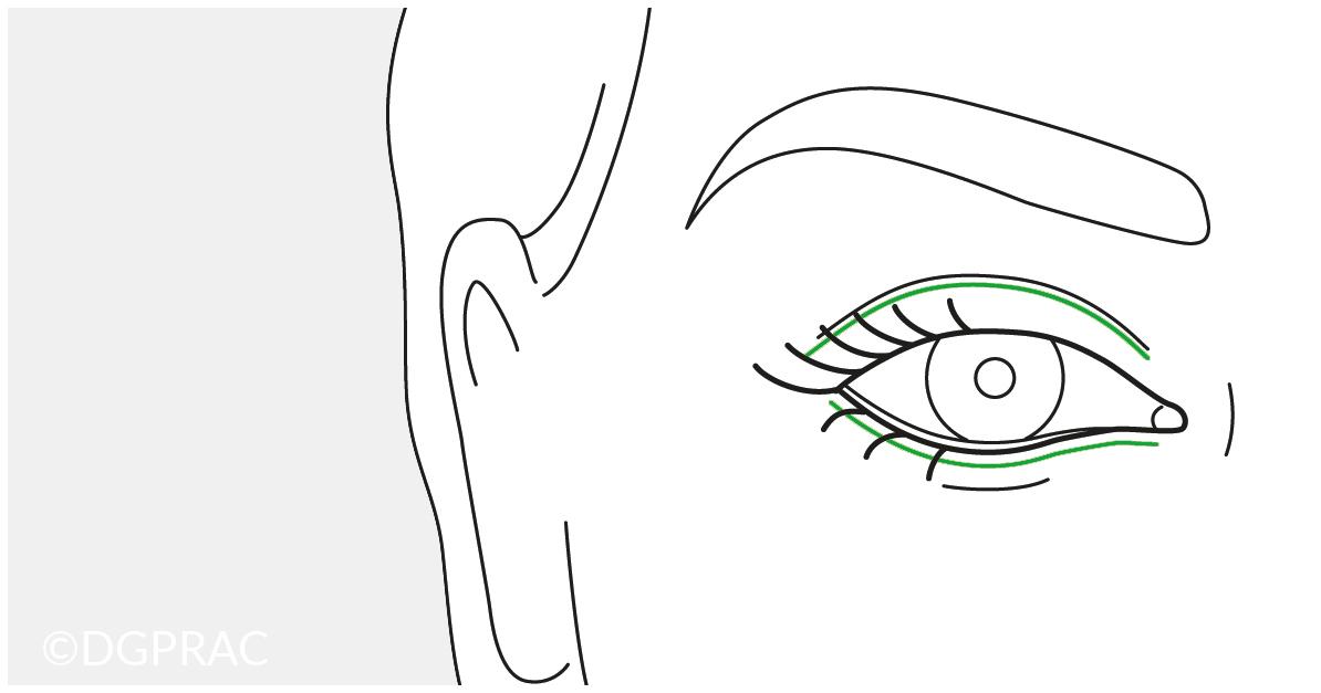 Augenlidkorrekturen und Augenlidstraffung in der Praxis FINKE & FRANTZEN Plastische Chirurgie Berlin